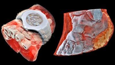 цветной 3D-рентген