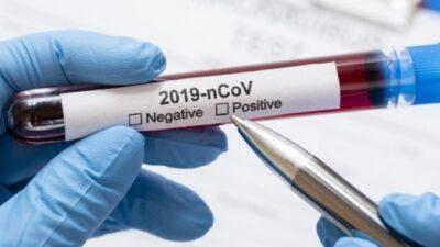 Нові випадки інфекційної хвороби виявлені на Дніпропетровщині