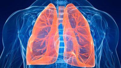 5 продуктів, які допоможуть вам очистити легені