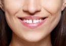щель между зубами